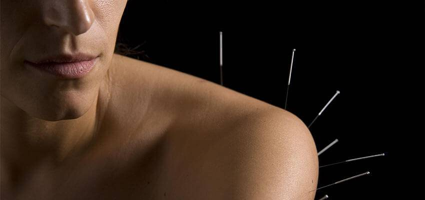 Acupuncture Shoulder Pain Treatment
