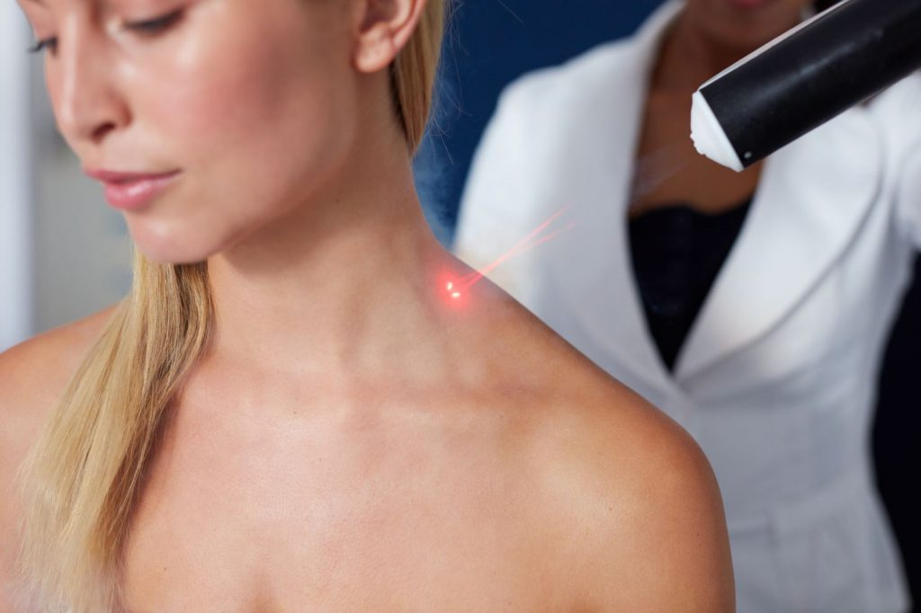 cold laser therapy in barrie